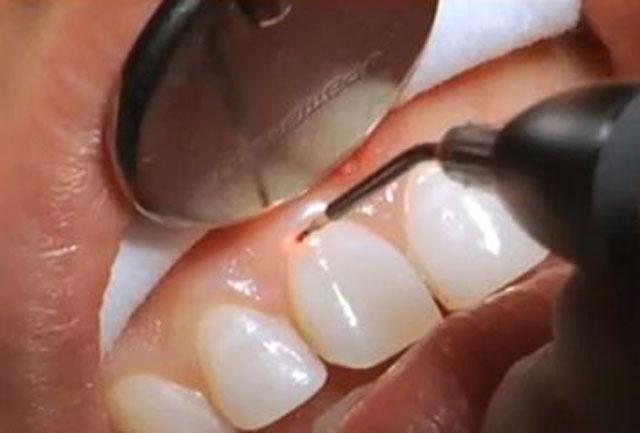 مزایای لیزر درمانی برای افزایش طول تاج دندان