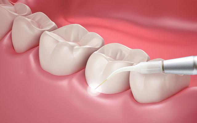 افزایش طول تاج دندان با لیزر