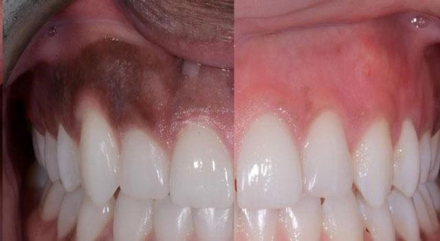 عدم اصلاح خنده لثه نما و پوسیدگی دندان