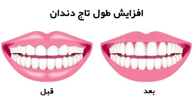 قبل و بعد از افزایش طول تاج دندان