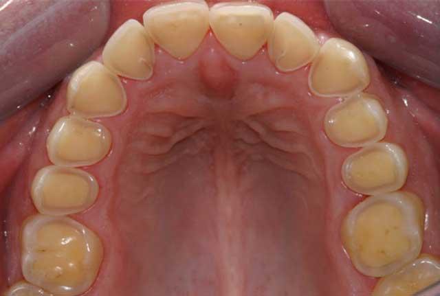 اثر رفلاکس معده بر دندانها