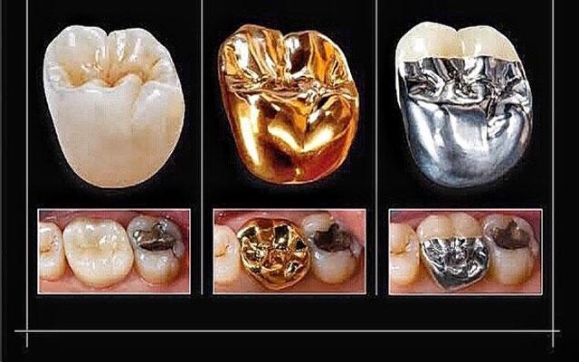انواع روکش دندان