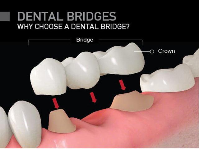 بریج دندان و کراون