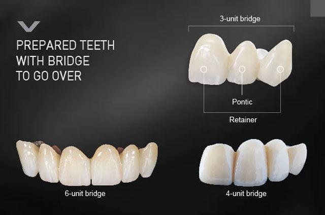 آماده سازی دندان برای نصب پل دندان