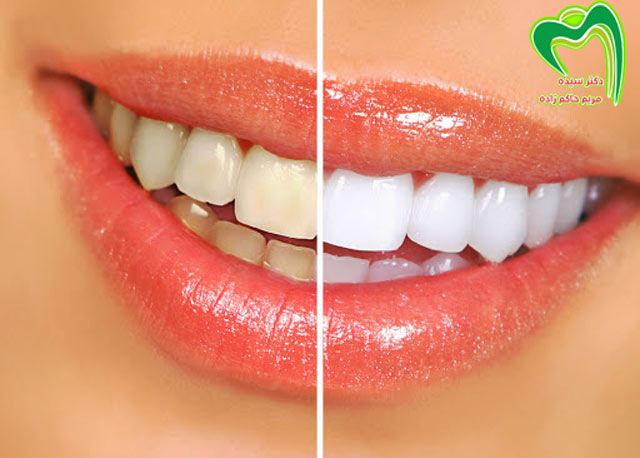 بلیچینگ دندان با لیزر