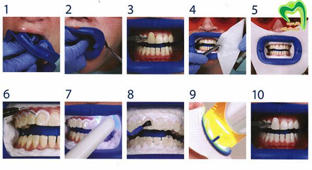 مراحل سفید کردن دندان با لیزر