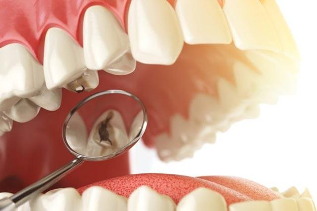 انواع روشهای درمانی پوسیدگی دندان