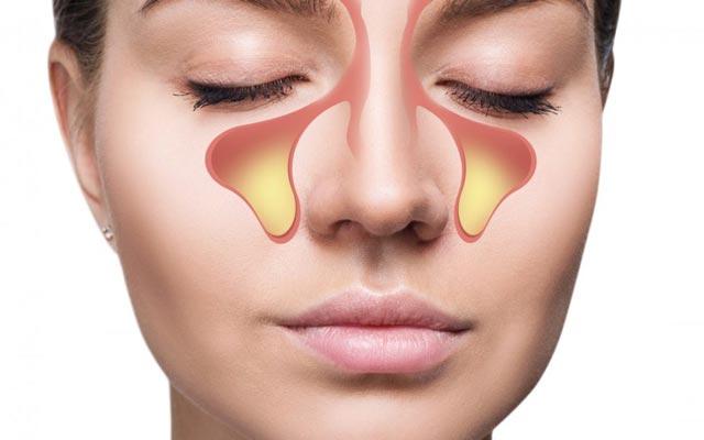ارتباط سینوزیت و بوی بد دهان