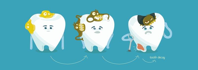 مراحل پوسیده شدن دندان