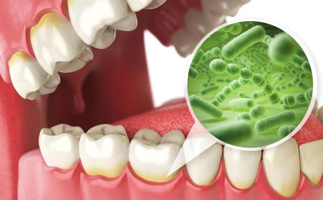علل بوی بد دهان ناشی از ریفلاکس اسید