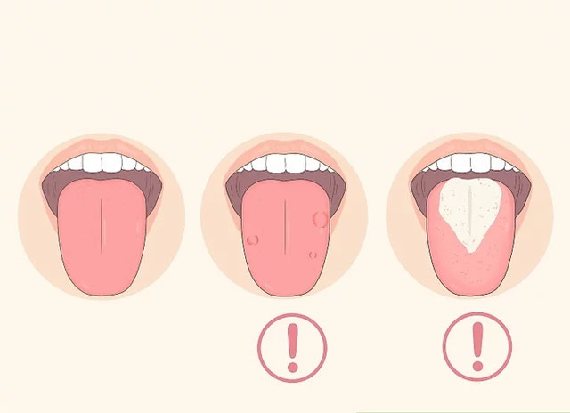 زبان خود را بررسی کنید