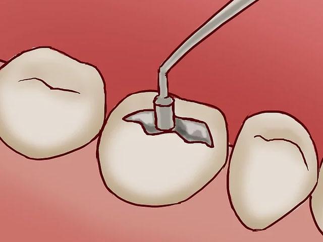 پر کردن دندان شکسته