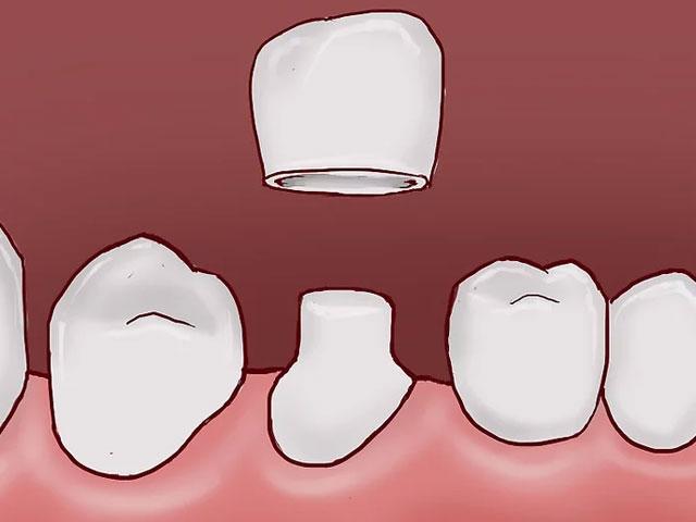 قرار دادن تاج برای درمان شکستگی دندان