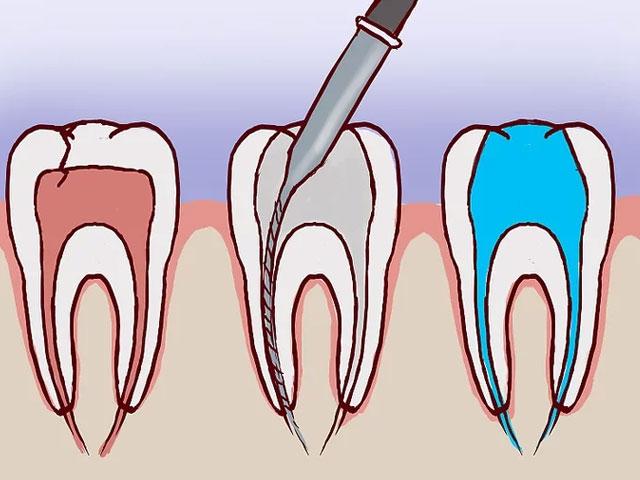 عصب کشی برای درمان دندان شکسته