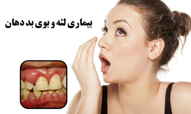 بیماری لثه و بوی بد دهان