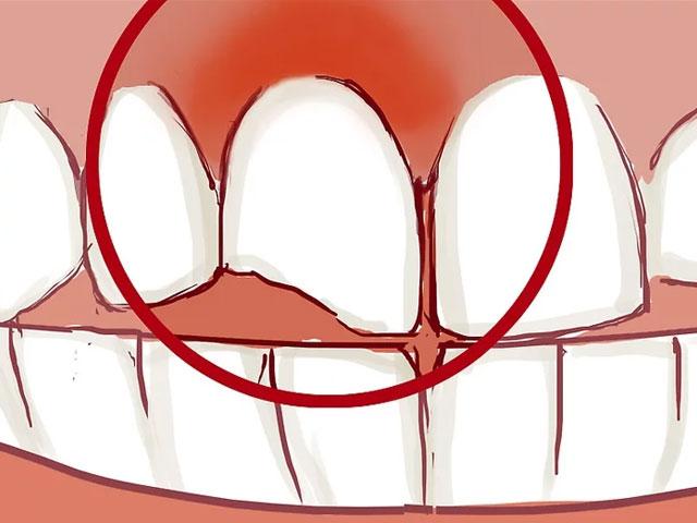 بررسی عقونت و التهاب اطراف شکستگی دندان