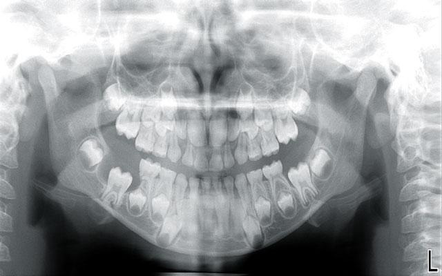 جراحی ضایعه و کیست لثه و دندان با لیزر