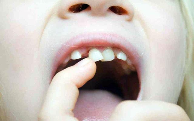 کشیدن دندان کودکان و دندان شیری