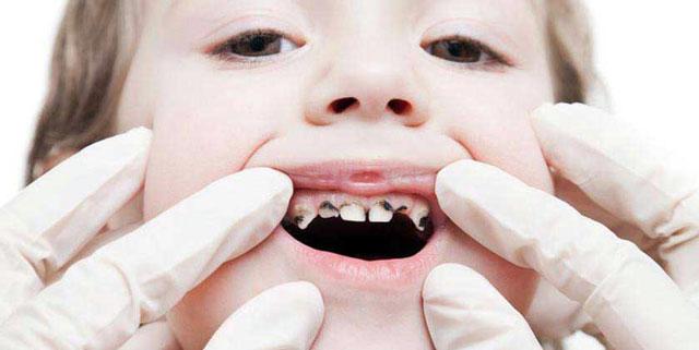 دلایل کشیدن دندان شیری