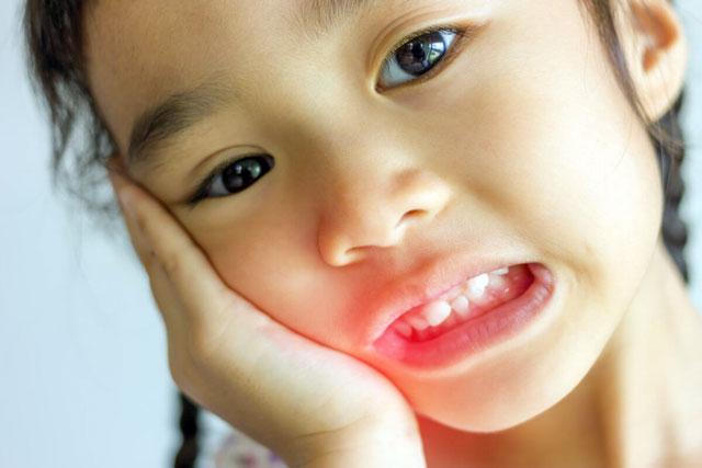 جلوگیری از مشکلات بعد از کشیدن دندان کودکان