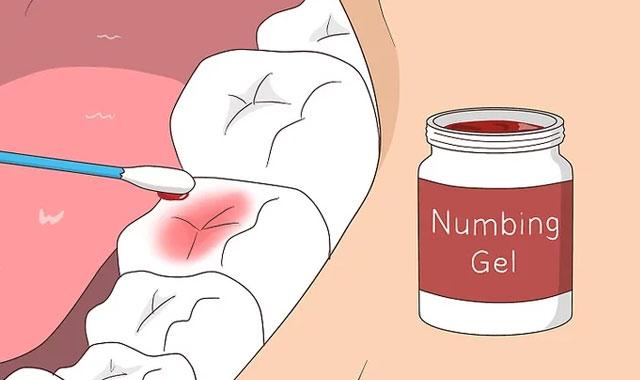 بیجسی موضعی برای درد دندان