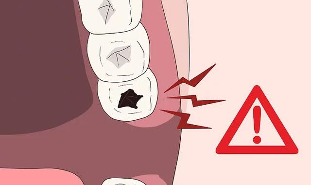مراجعه به دندانپزشک برای درد دندان