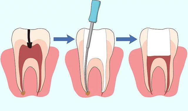عصب کشی جهت رفع درد دندان