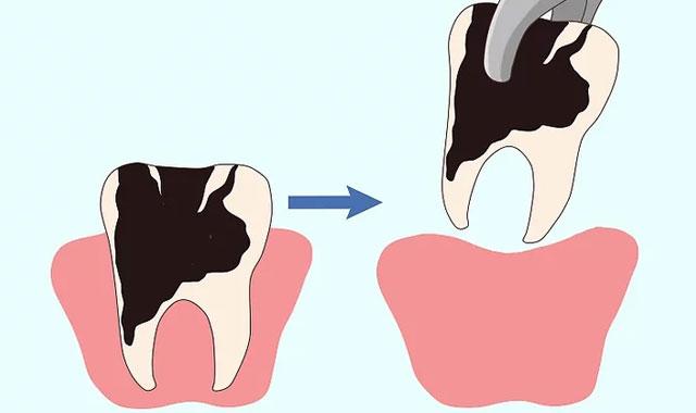 کشیدن دندان دچار درد