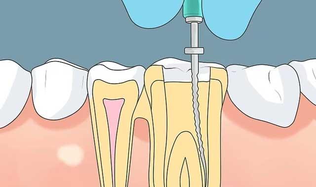 پرسش درباره نیاز به عصب کشی دندان عفونتی
