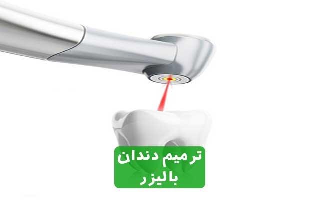 ترمیم دندان با لیزر بهترین روش رفع پوسیدگی دندان