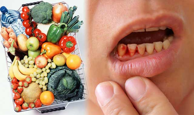 کمبود کدام ویتامین عامل خونریزی لثه است؟