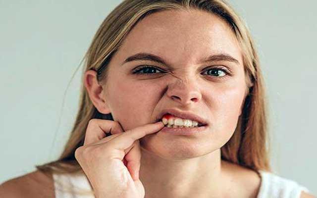 درمان خونریزی لثه و بوی بد دهان