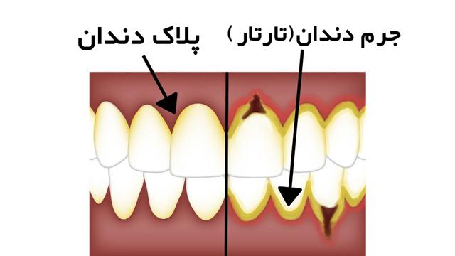 تفاوت جرم دندان و پلاک دندان