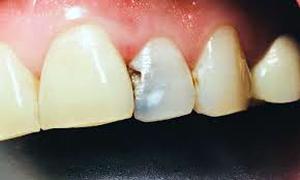 پوسیدگی دندان جلویی