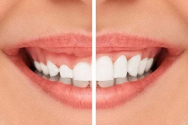 خنده لثه ای قبل و پس از درمان