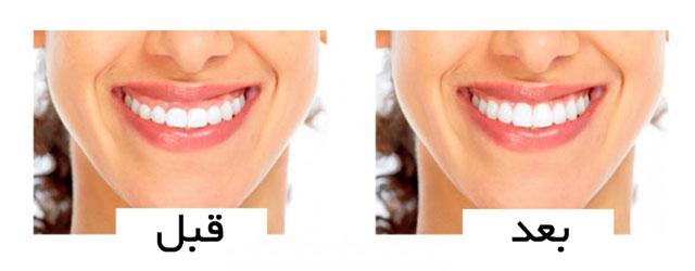 قبل و بعد از درمان لبخند لثه ای