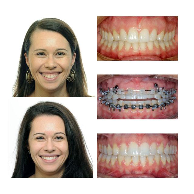 درمان لبخند لثه ای با ارتودنسی