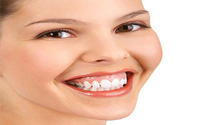 لبخند لثه ای چیست؟