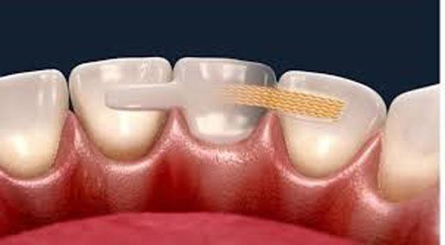 بریج دندان مریلند