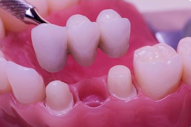 پل دندان