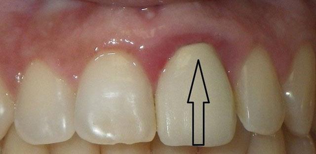التهاب لثه از عوارض روکش دندان