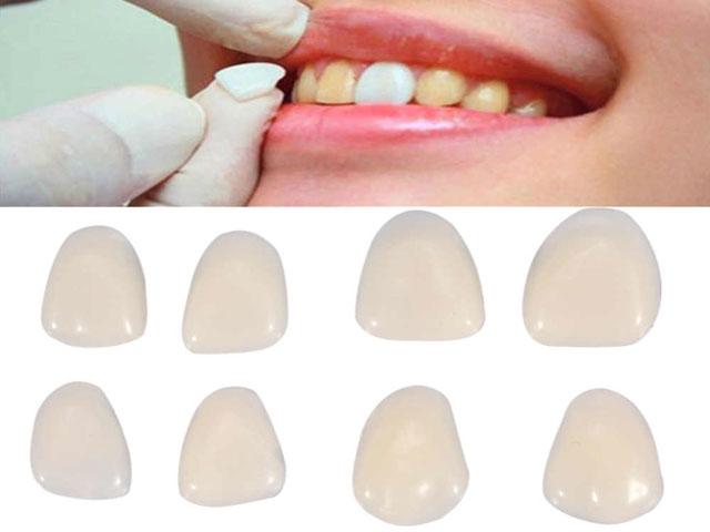 روکش دندان موقت