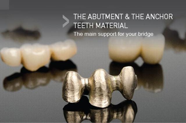 ساخت دندانهای لنگر یا تکیهگاه، مهمترین ساپورتر بریج دندان