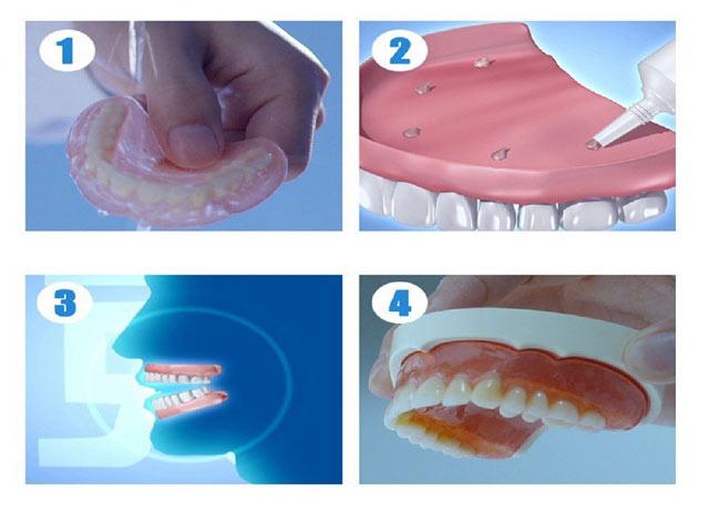 چسب پروتز دندان