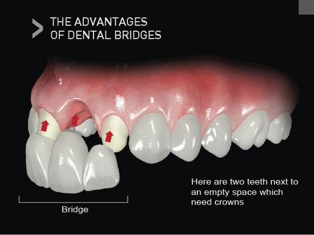 مزایای بریج دندان (دو دندان در کنار فضای خالی وجود دارد که نیاز به روکش دارد)