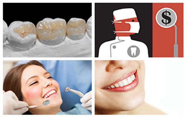 هزینه های روکش دندان