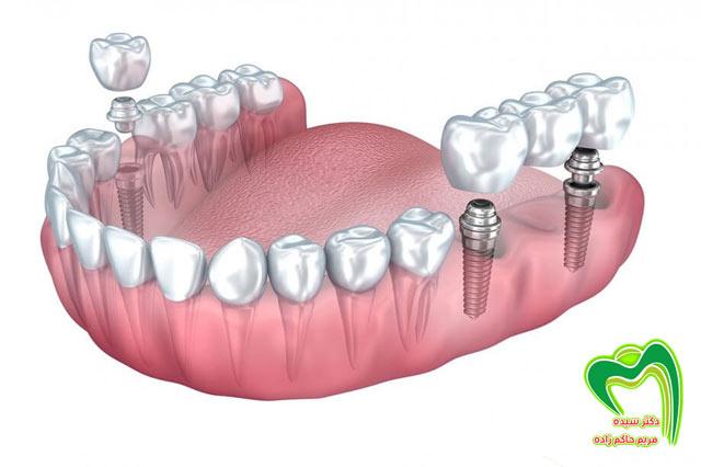 بریج دندان تحت حمایت ایمپلنت