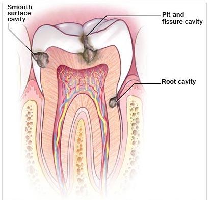 انواع حفره دندانی