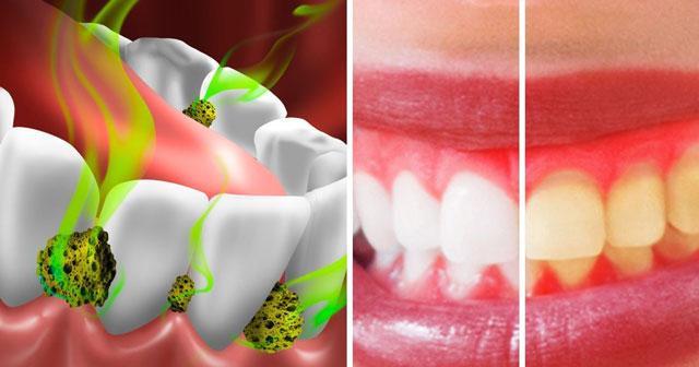 بد بویی دهان ناشی از دهان و دندان