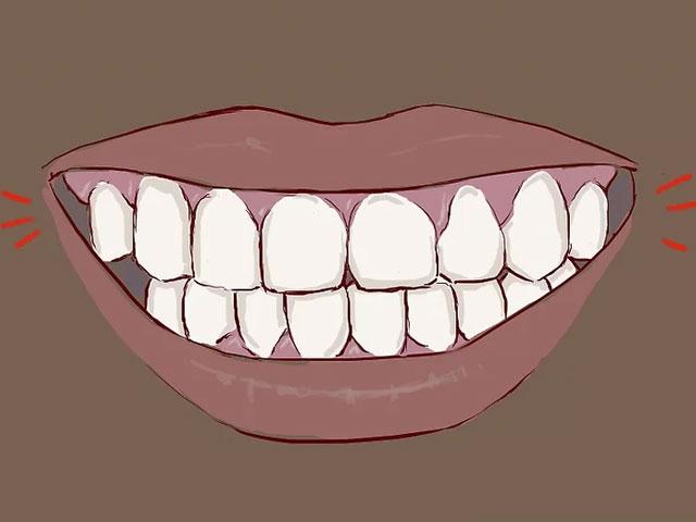 جلوگیری از شکستن دندان